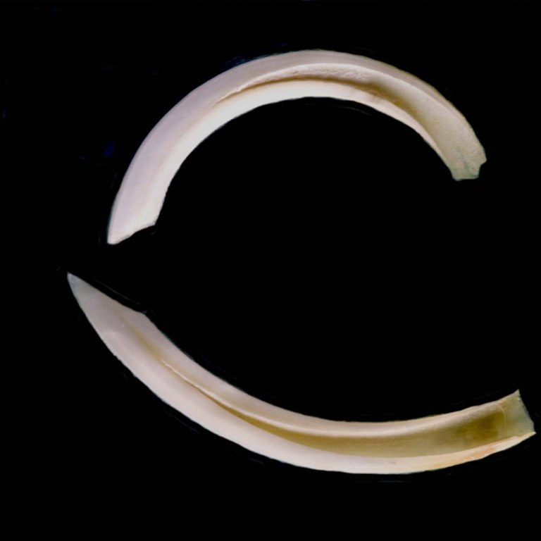 Incisor pulp cavities