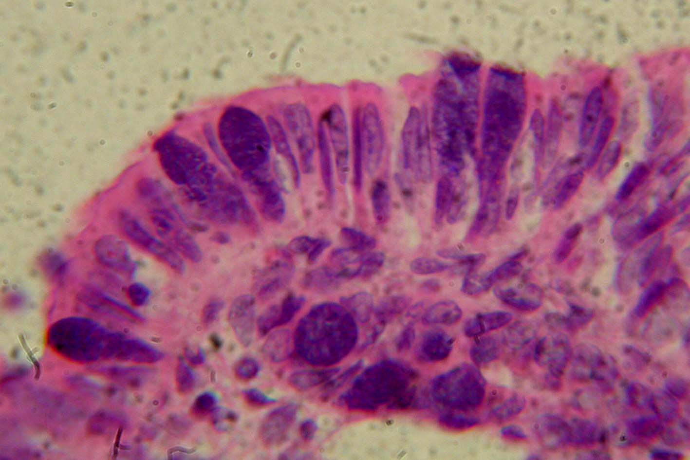 Coccidia in intestinal mucosa