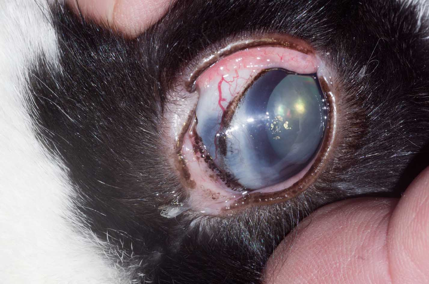 Glaucoma and staphyloma
